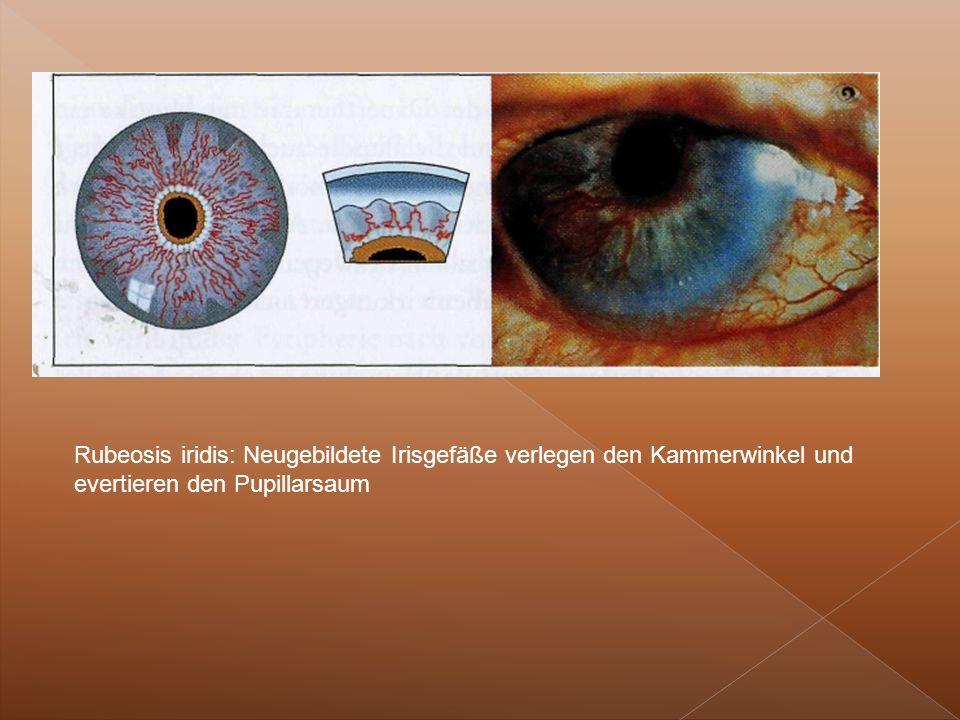 Rubeosis iridis: Neugebildete Irisgefäße verlegen den Kammerwinkel und