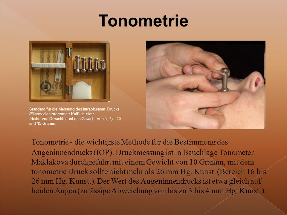Tonometrie Standard für die Messung des intraokularen Drucks (Filatov elastotonometr-Kalf). In eizer.