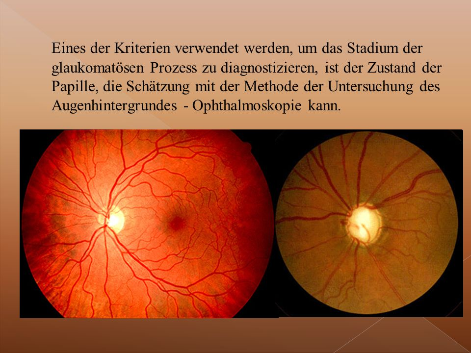 Eines der Kriterien verwendet werden, um das Stadium der glaukomatösen Prozess zu diagnostizieren, ist der Zustand der Papille, die Schätzung mit der Methode der Untersuchung des Augenhintergrundes - Ophthalmoskopie kann.