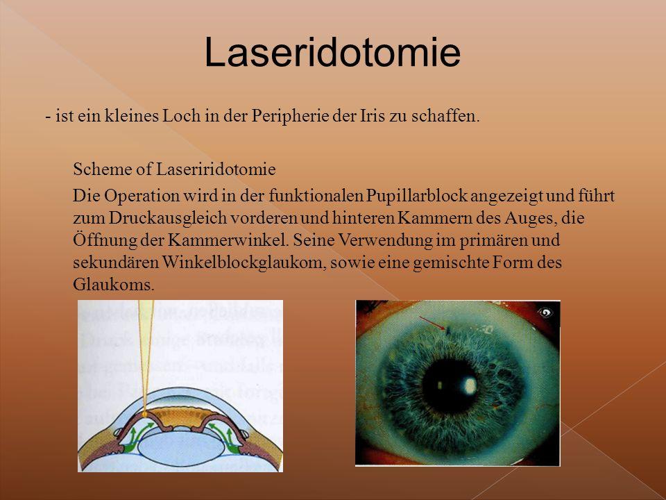 Laseridotomie - ist ein kleines Loch in der Peripherie der Iris zu schaffen. Scheme of Laseriridotomie.