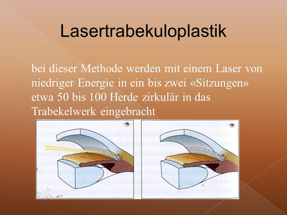 Lasertrabekuloplastik