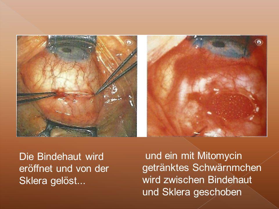 Die Bindehaut wird eröffnet und von der Sklera gelöst...