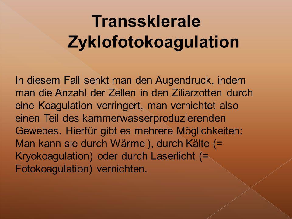 Transsklerale Zyklofotokoagulation