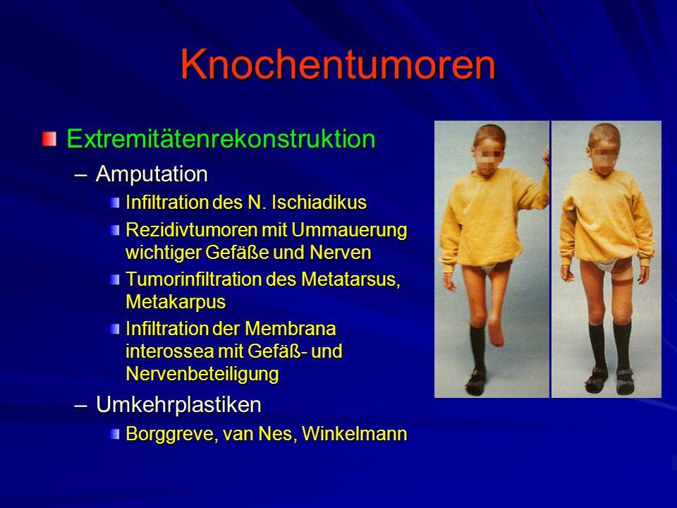 Knochentumoren Extremitätenrekonstruktion Amputation Umkehrplastiken