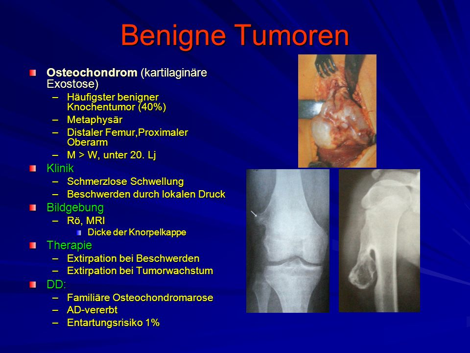 Benigne Tumoren Osteochondrom (kartilaginäre Exostose) Klinik