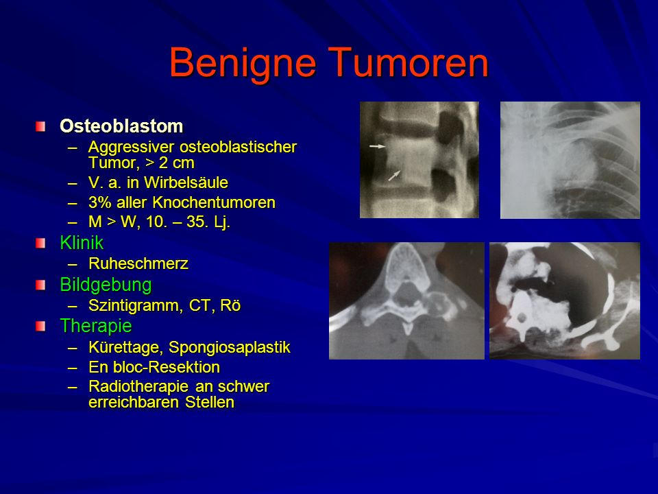 Benigne Tumoren Osteoblastom Klinik Bildgebung Therapie