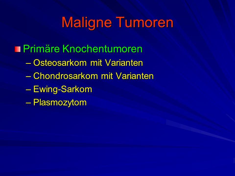 Maligne Tumoren Primäre Knochentumoren Osteosarkom mit Varianten