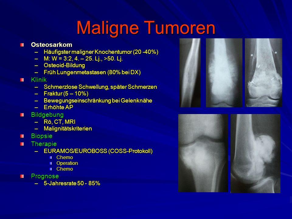 Maligne Tumoren Osteosarkom Klinik Bildgebung Biopsie Therapie