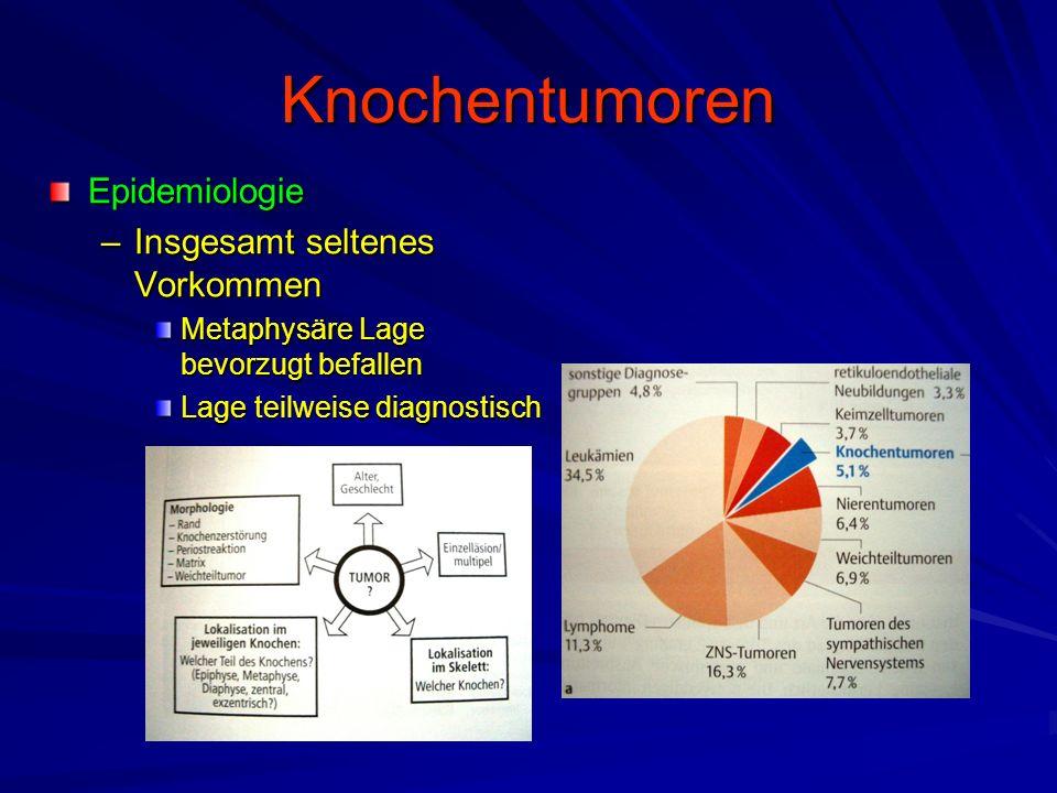 Knochentumoren Epidemiologie Insgesamt seltenes Vorkommen