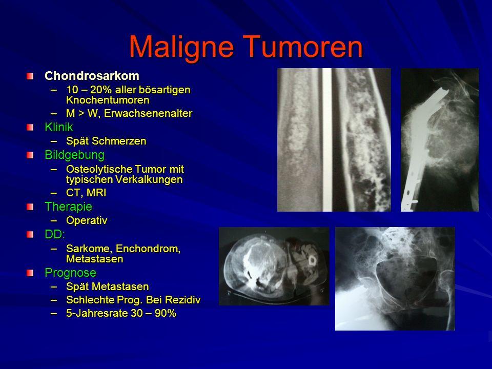 Maligne Tumoren Chondrosarkom Klinik Bildgebung Therapie DD: Prognose