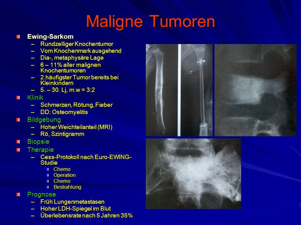Maligne Tumoren Ewing-Sarkom Klinik Bildgebung Biopsie Therapie