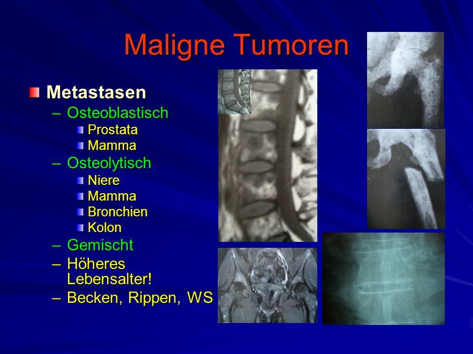 Maligne Tumoren Metastasen Osteoblastisch Osteolytisch Gemischt