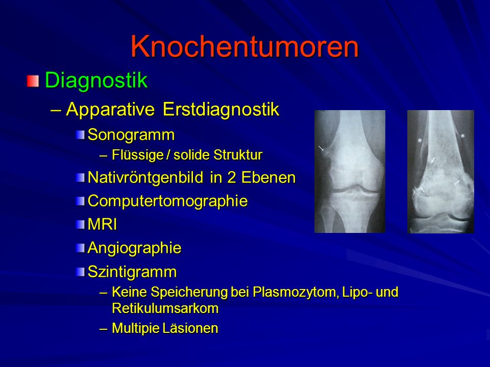 Knochentumoren Diagnostik Apparative Erstdiagnostik Sonogramm