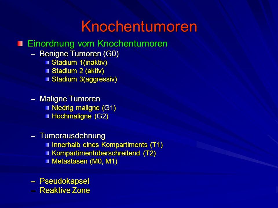 Knochentumoren Einordnung vom Knochentumoren Benigne Tumoren (G0)