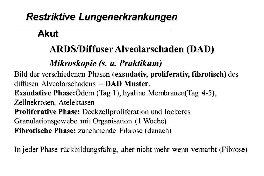 Restriktive Lungenerkrankungen Akut