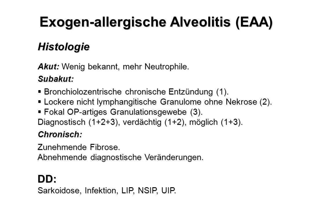 Exogen-allergische Alveolitis (EAA)
