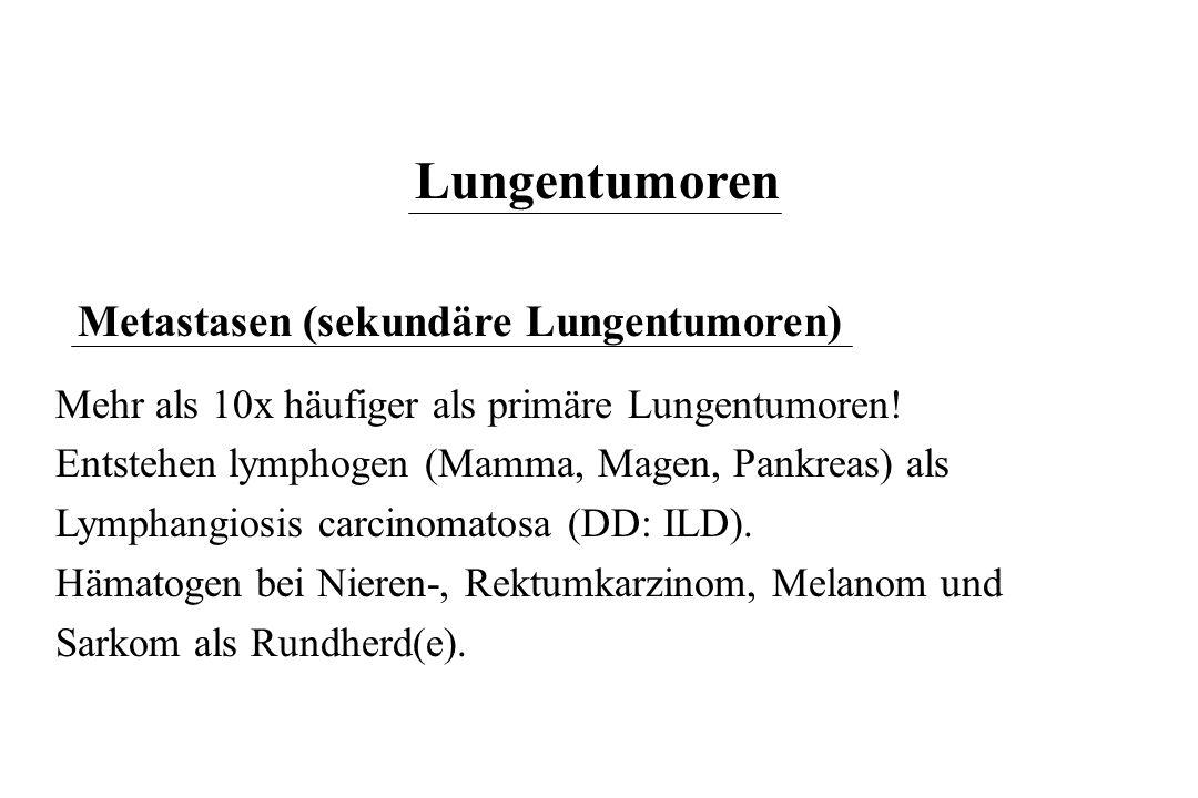 Lungentumoren Metastasen (sekundäre Lungentumoren)