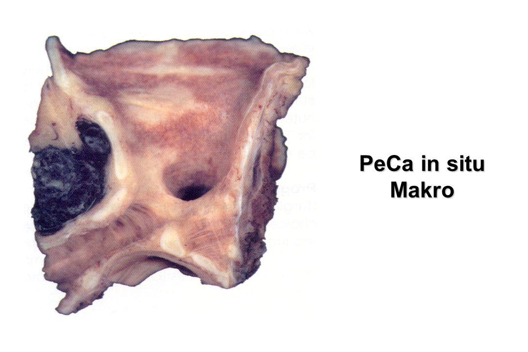 PeCa in situ Makro. Mit freiem Auge oft nicht zu sehen, besser Bronchoskop (Lupe und weiß oder Fluoreszenzlicht)