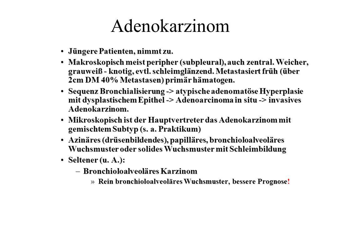 Adenokarzinom Jüngere Patienten, nimmt zu.