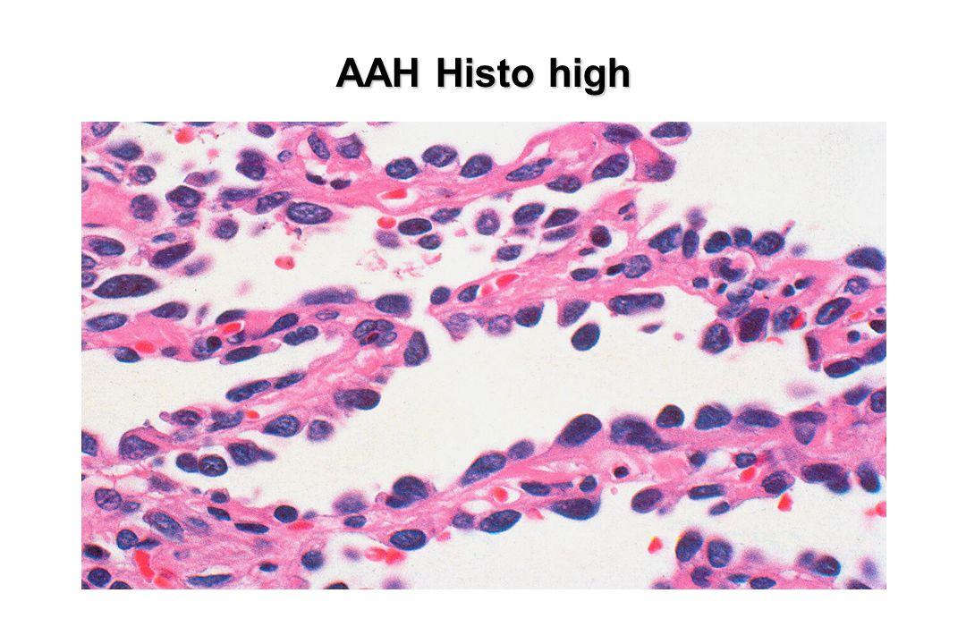 AAH Histo high Mäßig atyp. Zellen einlagig mit Abständen, keine Invasion