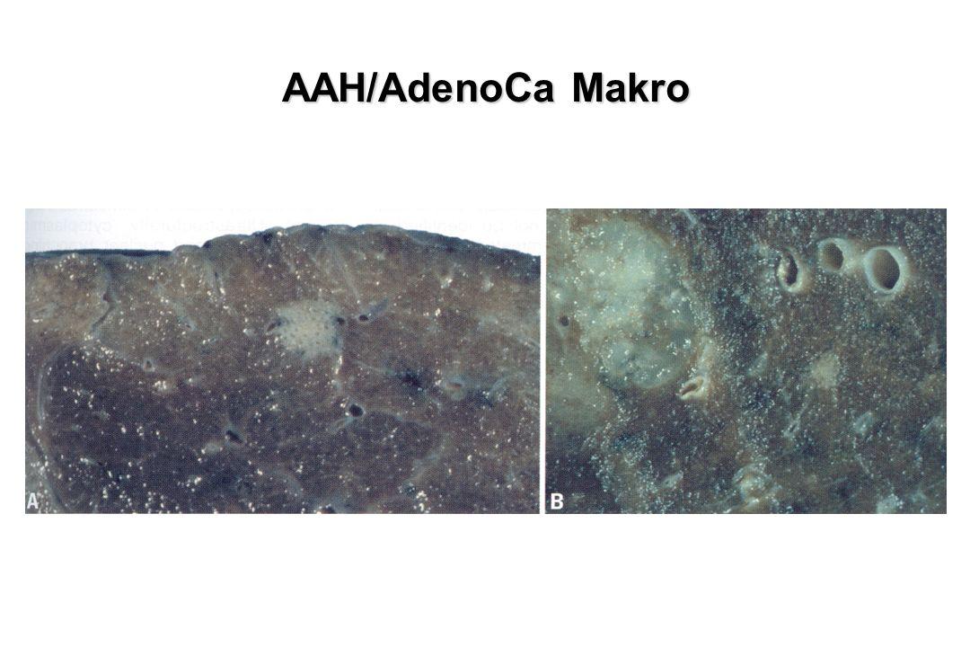 AAH/AdenoCa Makro AAH und AAH mit Ca daneben
