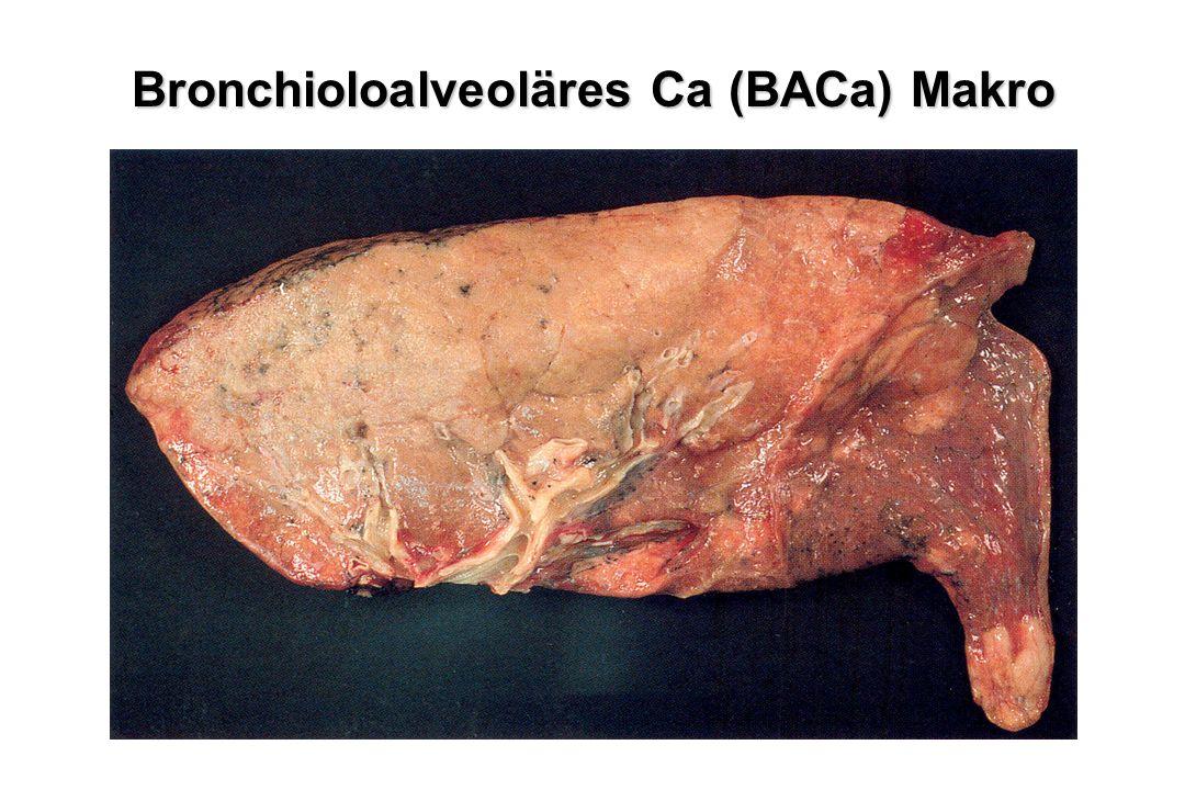 Bronchioloalveoläres Ca (BACa) Makro