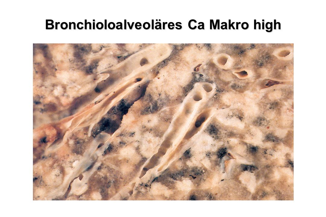 Bronchioloalveoläres Ca Makro high