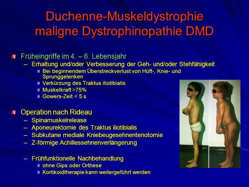 Duchenne-Muskeldystrophie maligne Dystrophinopathie DMD