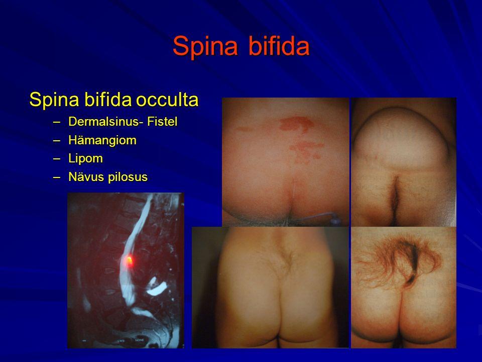 Spina bifida Spina bifida occulta Dermalsinus- Fistel Hämangiom Lipom