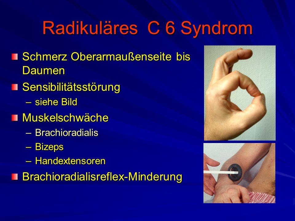 Radikuläres C 6 Syndrom Schmerz Oberarmaußenseite bis Daumen