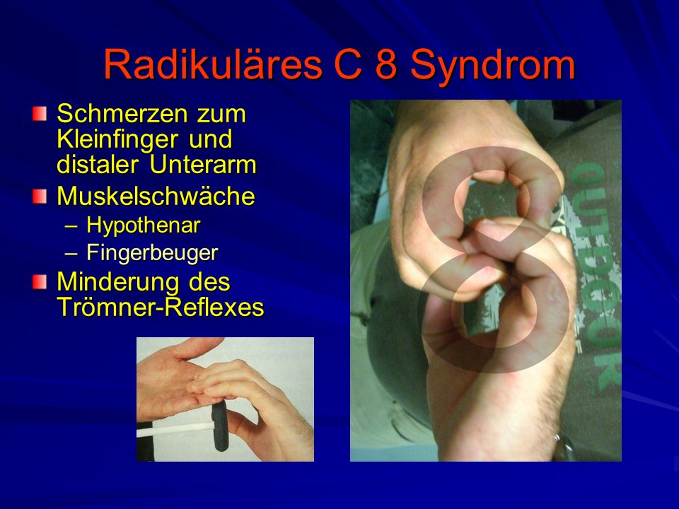 Radikuläres C 8 Syndrom Schmerzen zum Kleinfinger und distaler Unterarm. Muskelschwäche. Hypothenar.