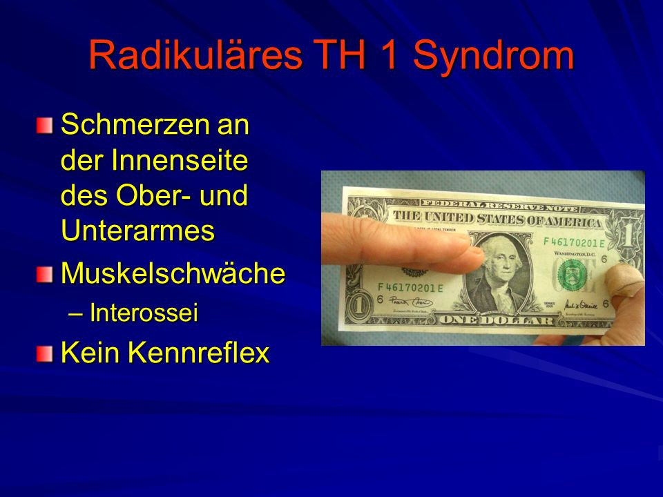 Radikuläres TH 1 Syndrom