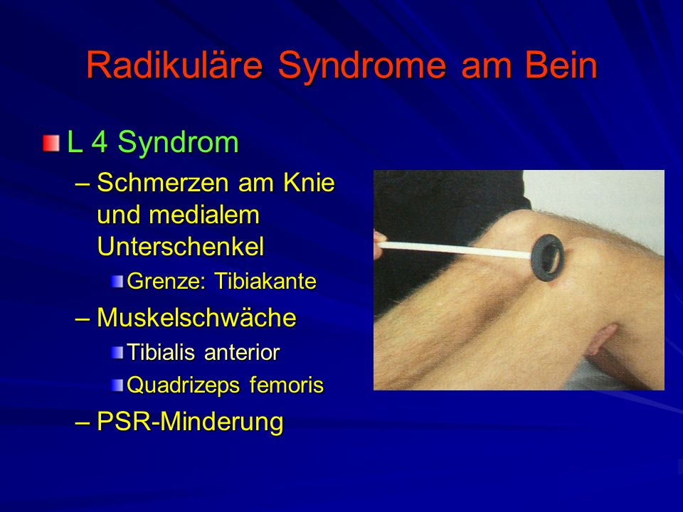 Radikuläre Syndrome am Bein