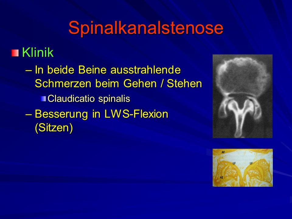 Spinalkanalstenose Klinik