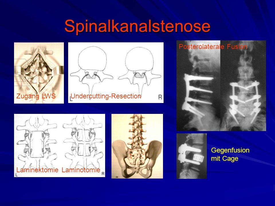 Spinalkanalstenose Posterolaterale Fusion Zugang LWS