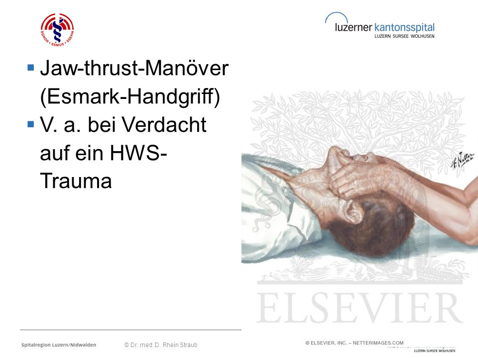 Jaw-thrust-Manöver (Esmark-Handgriff) V. a. bei Verdacht auf ein HWS-