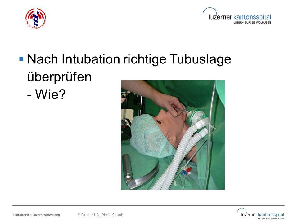 Nach Intubation richtige Tubuslage überprüfen - Wie