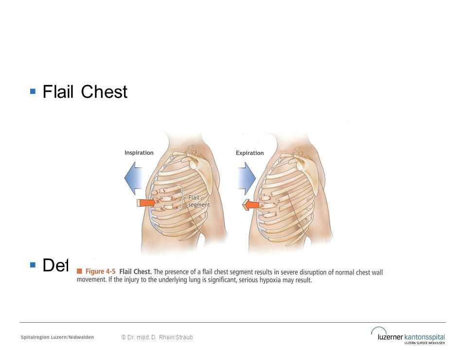 Flail Chest Definition © Dr. med. D. Rhein Straub