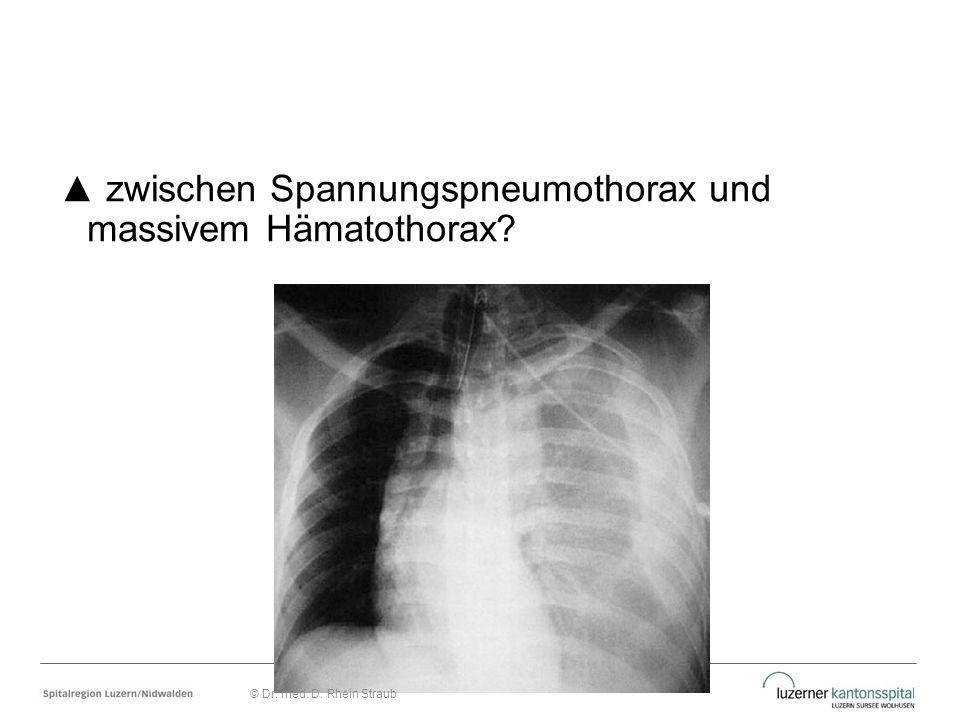 ▲ zwischen Spannungspneumothorax und massivem Hämatothorax