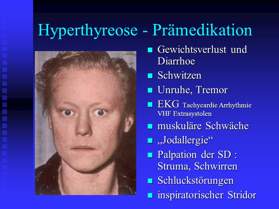 Hyperthyreose - Prämedikation