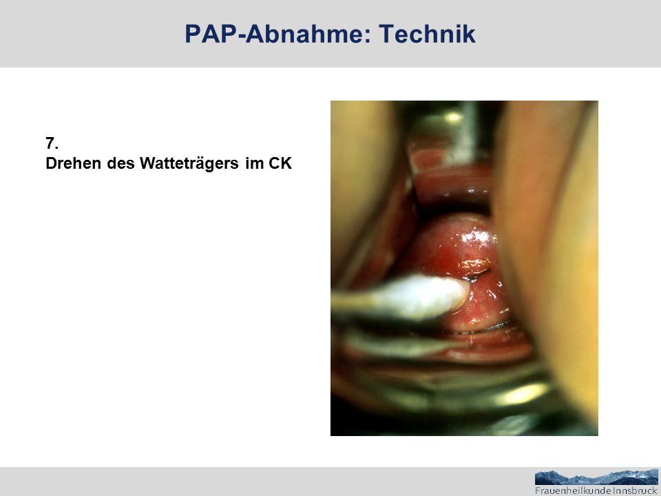 PAP-Abnahme: Technik 7. Drehen des Watteträgers im CK