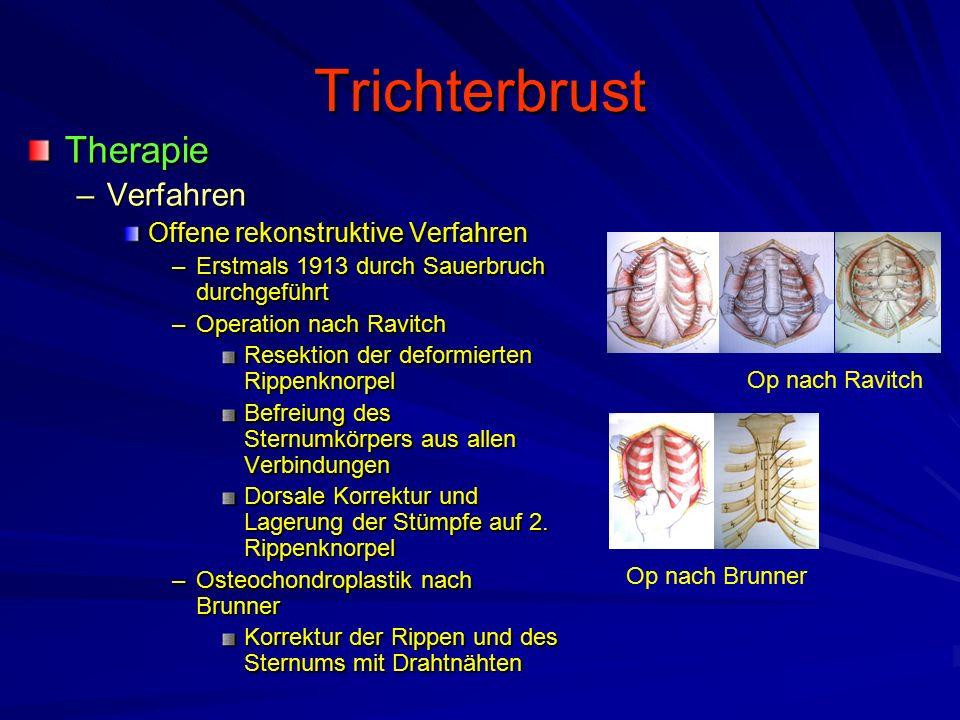 Trichterbrust Therapie Verfahren Offene rekonstruktive Verfahren