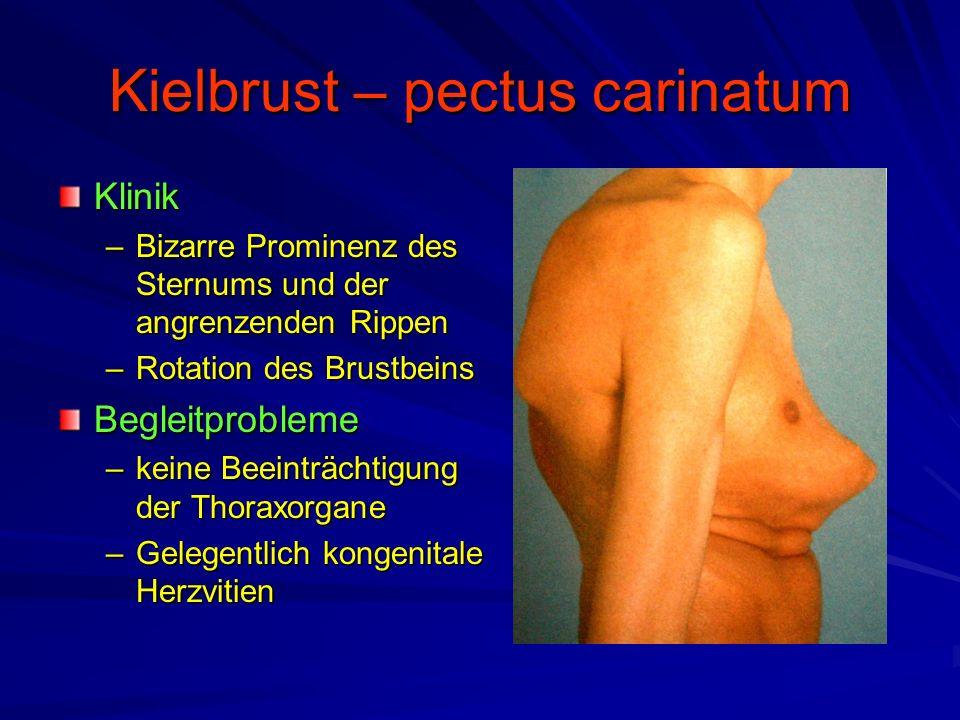Kielbrust – pectus carinatum