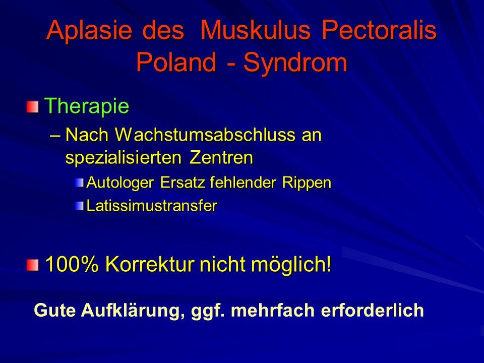 Aplasie des Muskulus Pectoralis Poland - Syndrom