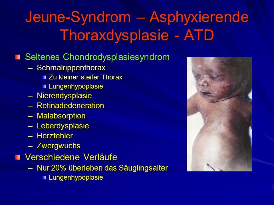 Jeune-Syndrom – Asphyxierende Thoraxdysplasie - ATD