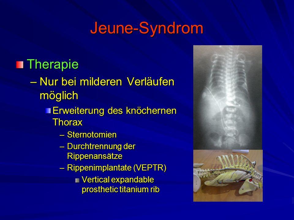 Jeune-Syndrom Therapie Nur bei milderen Verläufen möglich