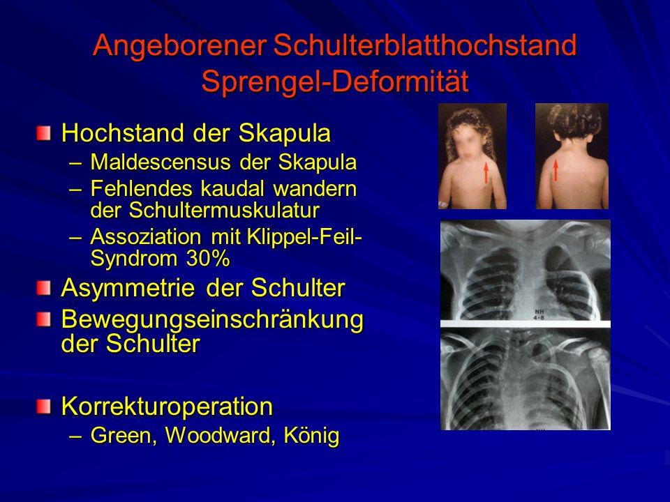 Angeborener Schulterblatthochstand Sprengel-Deformität