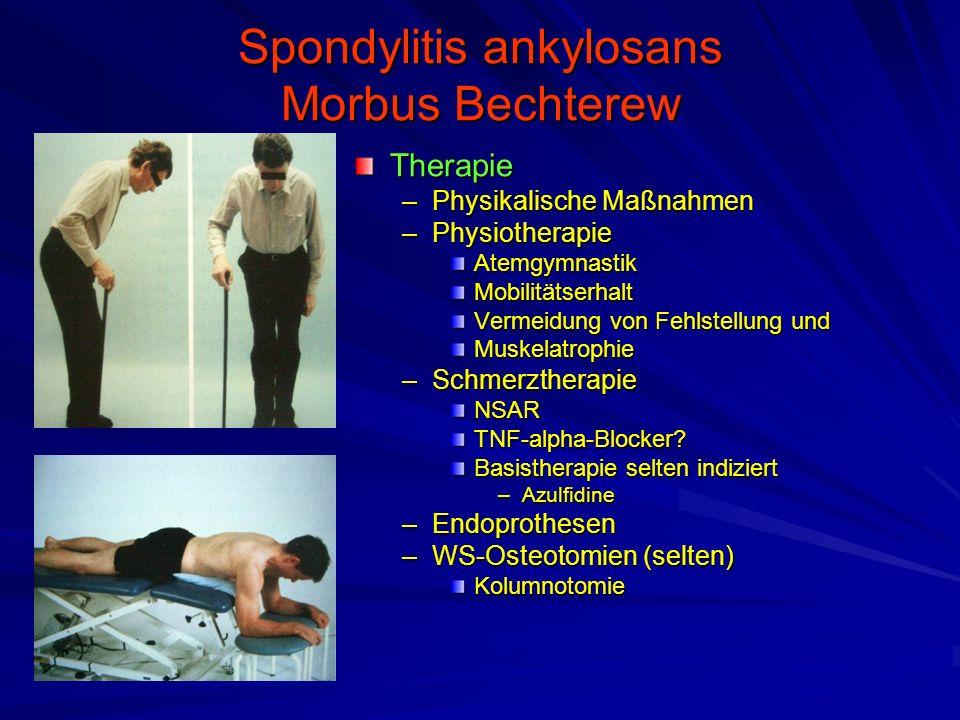 Spondylitis ankylosans Morbus Bechterew