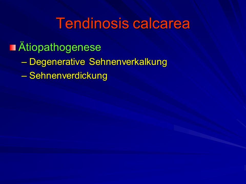 Tendinosis calcarea Ätiopathogenese Degenerative Sehnenverkalkung
