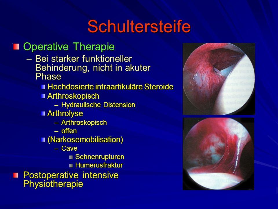 Schultersteife Operative Therapie